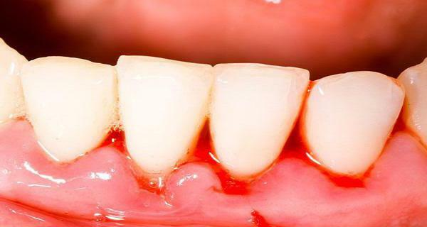 so that your teeth do not stagger than you can strengthen your gums