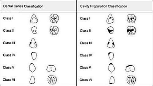 classification of cavities in black