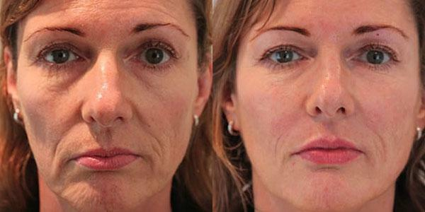 Fillers under the eyes of the photo before and after