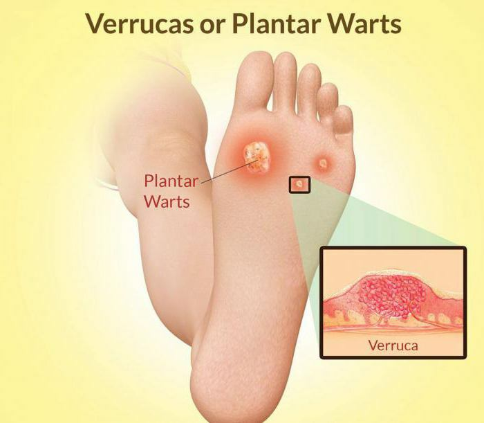Removal of plantar warts by laser