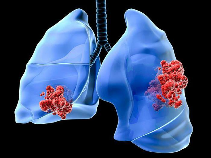 how to recognize lung cancer at an early stage in adults