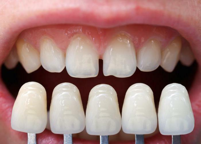 What is the difference between veneers from lumineers?