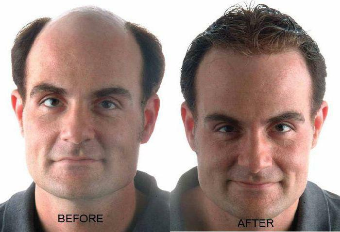 darsonval with hair loss how to apply