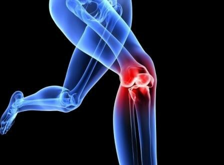 Physiotherapy for arthrosis of the knee joint