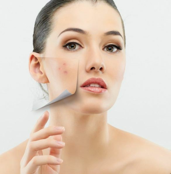 the cause of internal acne on the face