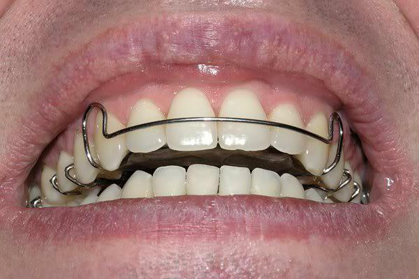Plate for teeth alignment in children