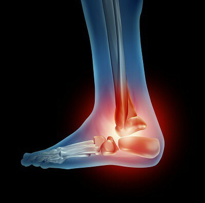 osteoarthritis of the ankles