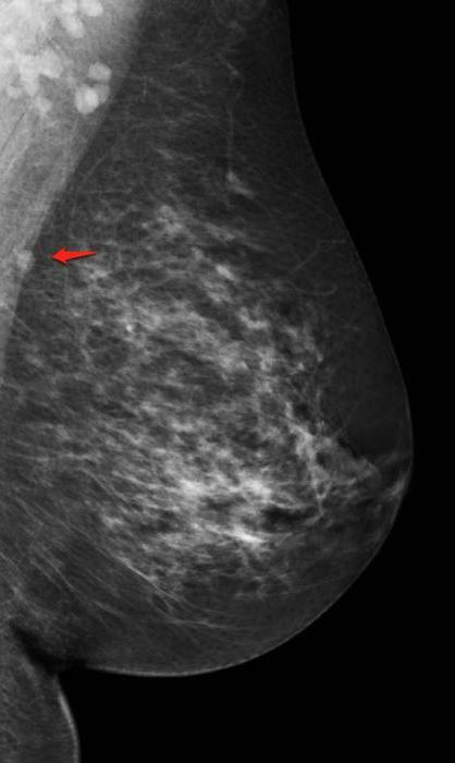 intramammary lymph node of the breast that it is
