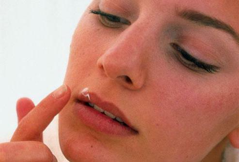 herpes folk remedies quickly
