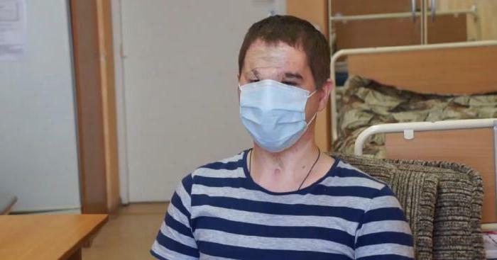face transplant surgery in Russia