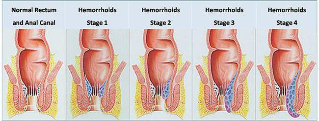 types of hemorrhoids photo symptoms