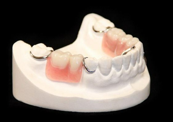 what removable denture is better to put