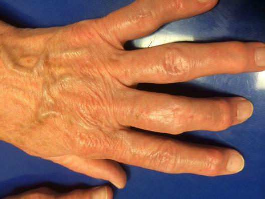 osteoarthrosis of the hands symptoms