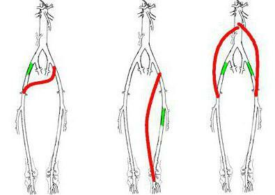 shunting of vessels of the lower extremities