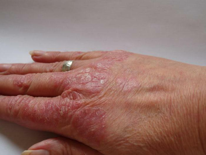 super psoriasis cream from psoriasis properties composition and reviews