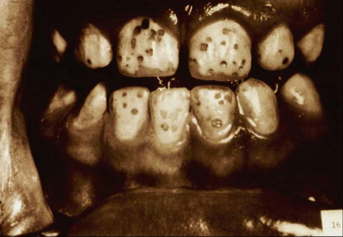 classification of cavities for black metal