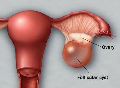 broken cyst ovary symptoms