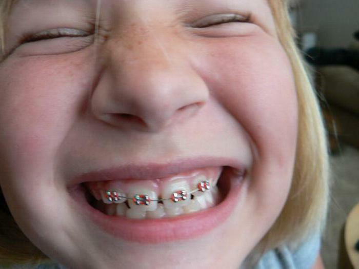 plates for teeth alignment in children photo