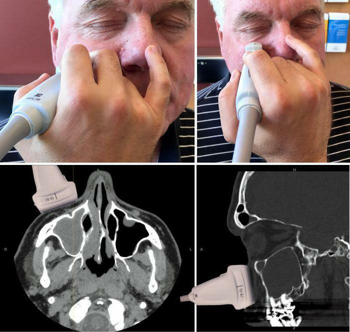 uzi sinuses of the nose that shows