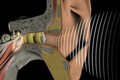 intracanal hearing aid reviews