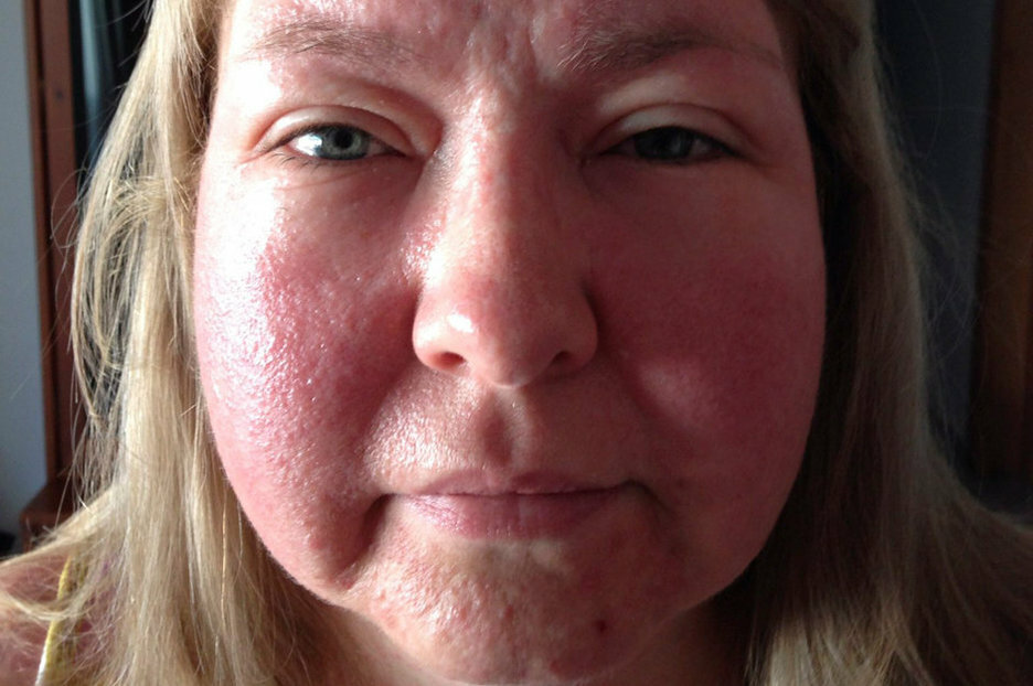 cutaneous manifestations of an allergic reaction