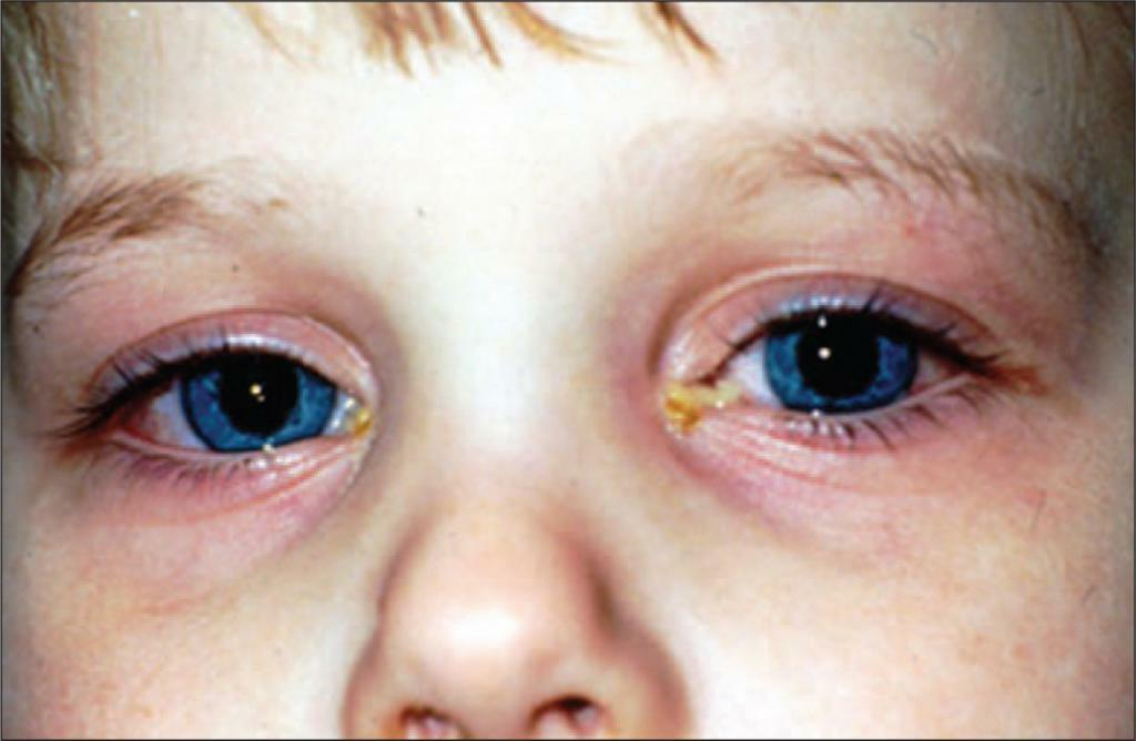 purulent conjunctivitis in children