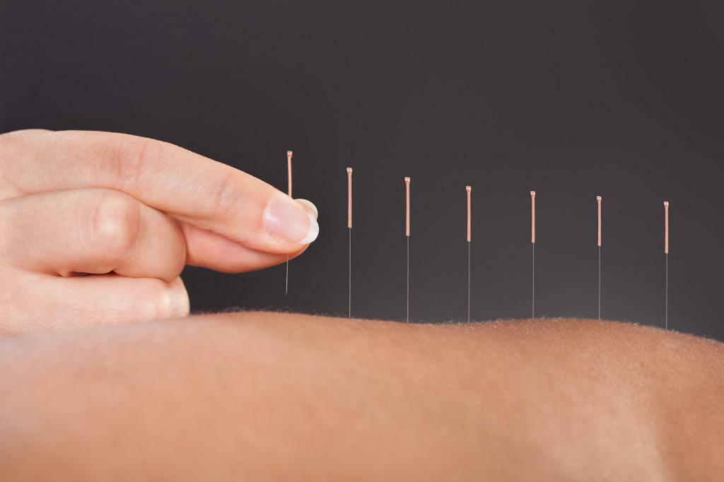 Acupuncture in the center of Chinese medicine