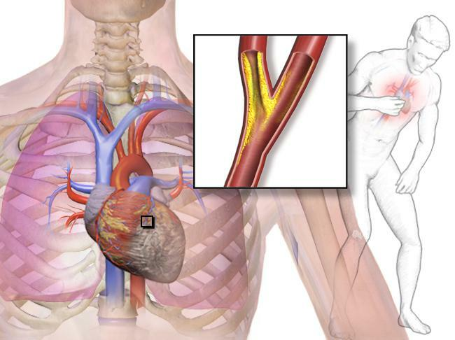 what to do in case of symptoms of angina pectoris