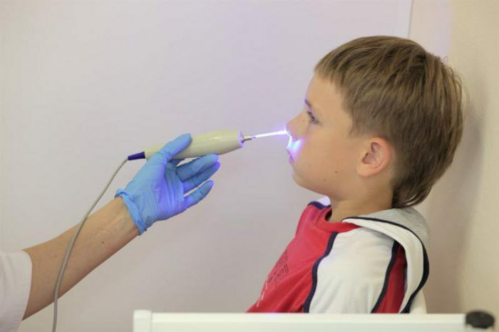 treatment of adenoids by laser in children reviews