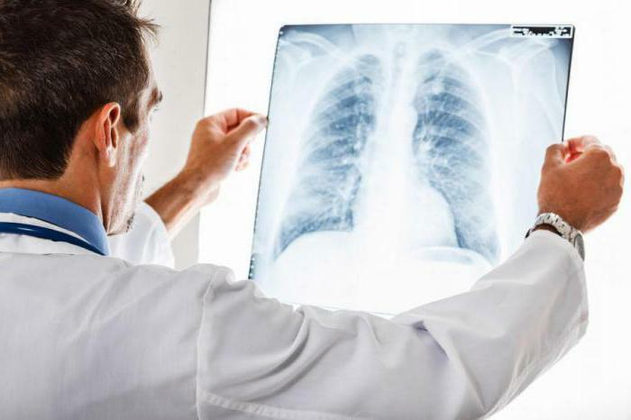 whether acute bronchitis is transmitted