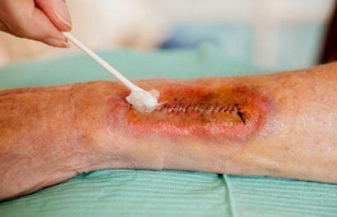Műtét utáni seroma