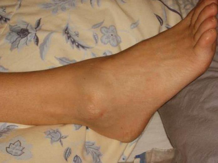 Как снять опухоль после ушиба ноги в домашних условиях 139